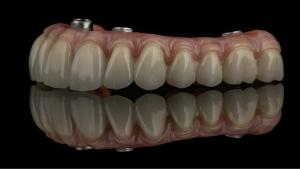 cost of full dental implants, zirconia bridge