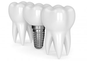 Smaller Dental Implant Posts