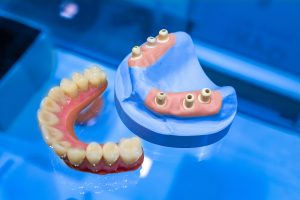 Dentistry. Model of human jaw on a blue background. Medical aid for the instruction of students. Denture. Manufacturing of prostheses. Dental office. Medical Institute.