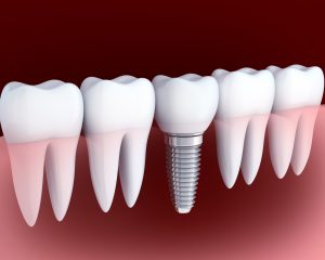 Tooth white and dental implant. 3d illustration