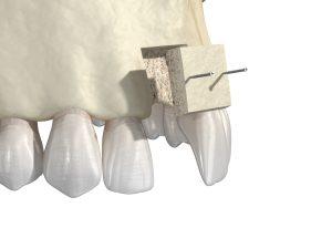fort worth jawbone grafting