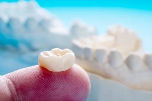 fort worth dental implant restoration