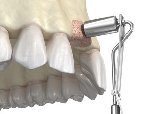 Bone grafting- augmentation using ring method, tooth implantation. Medically accurate 3D illustration