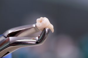 Dental equipment holding aan extracted tooth