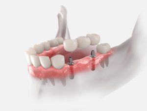 3d illustration of gums with dental bridge, supported by two implants