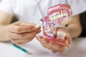 dentist implantologist showing dental bridge implant technology on human tooth jaw model