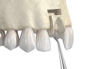 Bone grafting- augmentation using block of bone, tooth implantation. Medically accurate 3D illustration