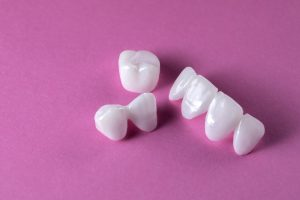 Zircon dentures on a pink background - Ceramic veneers - lumineers