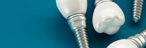 Close-up Of Dental Implant Against Blue Background