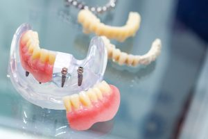 Dentistry. Models of human teeth. Preparation for prosthetics. Manufacture of dental prostheses. Installation of implants. Layout of the jaw. The work of a dental technician.