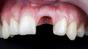 gum without central tooth after implant placement