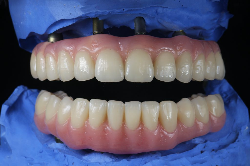implant dentures, same day dentures and implants
