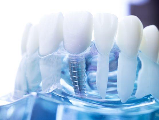 minimally invasive dental implants