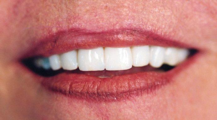 dental implant picture, dental implants benefits