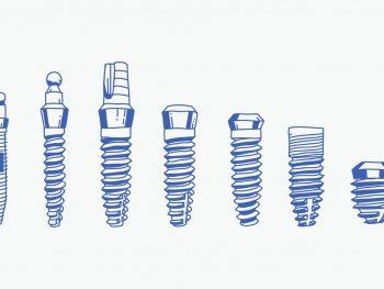 types of dental implants, mini implants
