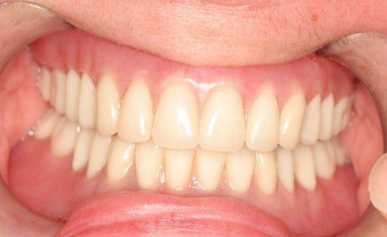 same day implants, dental implants one day
