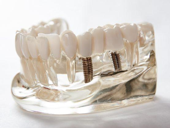 same day dental implants, dental implants one day
