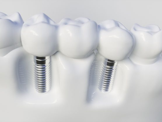 same day implants cost