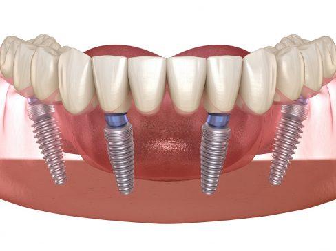 all on 4, dental implants all on 4