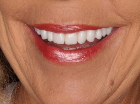 zirconia dental implants, zirconia bridges