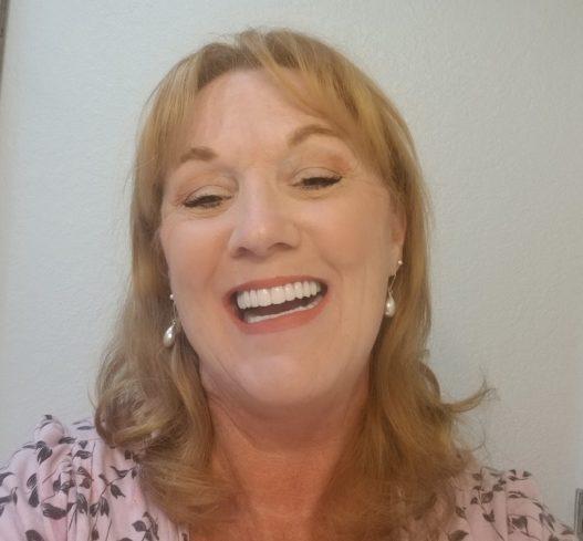 dental implants reviews, dental implant fort worth