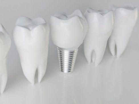 financing dental implants with bad credit
