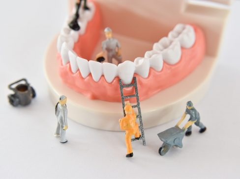 miniature people to repair a tooth or worker cleaning tooth model as medical and healthcare. Idea for cleaning dental care or dentist.