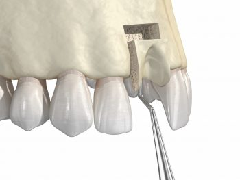Bone grafting- augmentation using block of bone, tooth implantation. Medically accurate 3D illustration