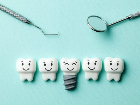 Healthy white teeth and implants are smiling against green mint background and dentist tools mirror, hook