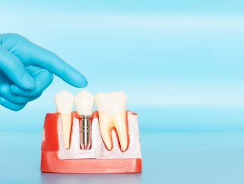 Plastic samples of dental implants compare with natural teeth for patients acknowledged the differences Of both types of teeth. To make decisions before beginning dental implant treatment.
