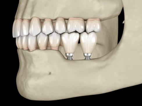 Implantation with mini implants in to recessed jaw bone: Medically accurate 3D illustration