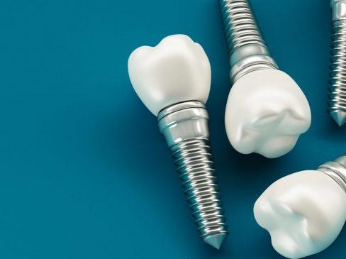mini dental implants, mini implants