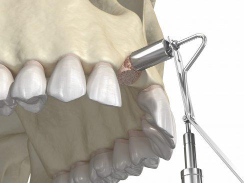 Bone grafting, dental implants