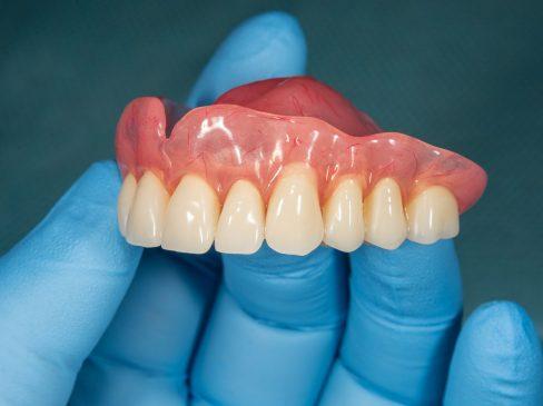 snap in dentures, snap on dentures