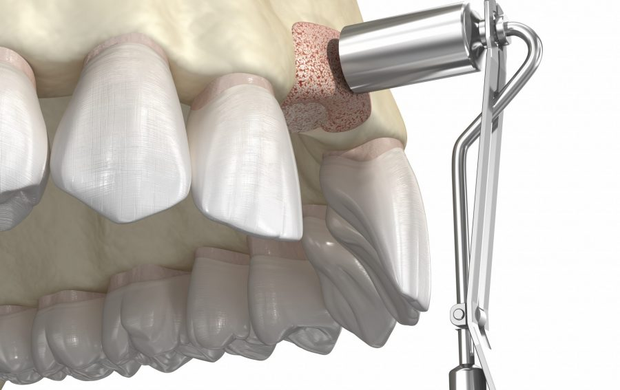 Bone grafting, bone grafts